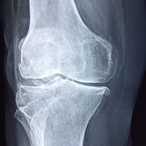 Generic Knee X-ray